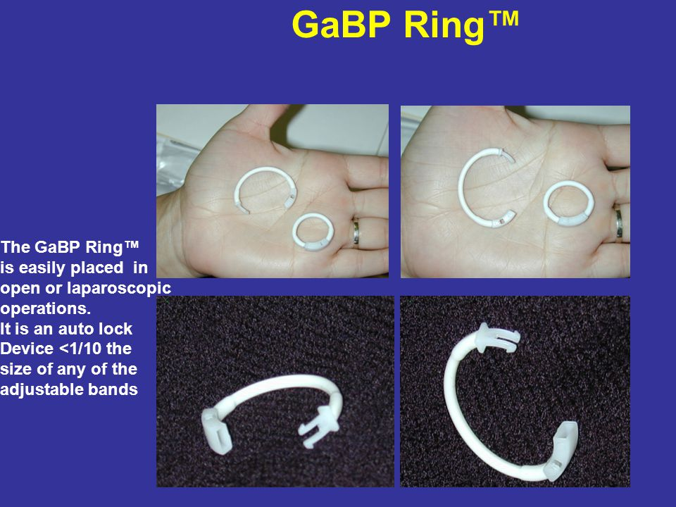 GaBP Ring The GaBP Ring is easily placed in open or laparoscopic operations.