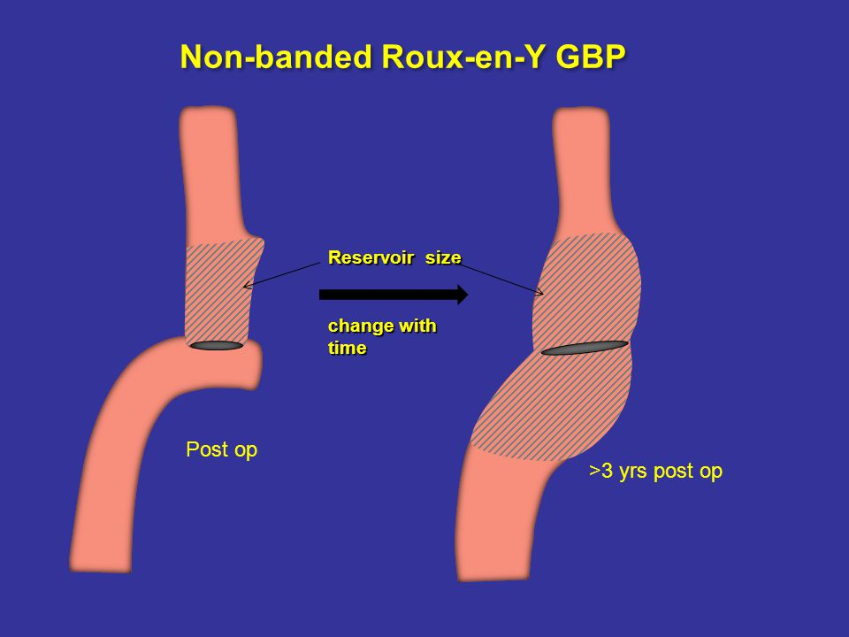 Reservoir size change with time Non-banded Roux-en-Y GBP Post op >3 yrs post op