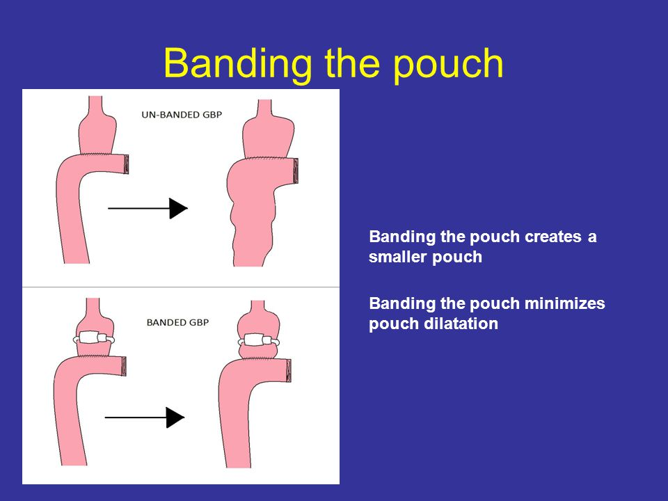 Banding the pouch Banding the pouch creates a smaller pouch Banding the pouch minimizes pouch dilatation