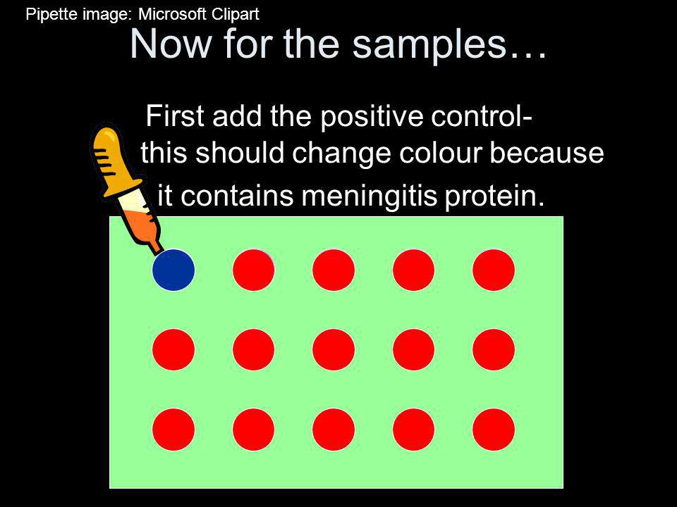 Now for the samples… First add the positive control- this should change colour because it contains meningitis protein.