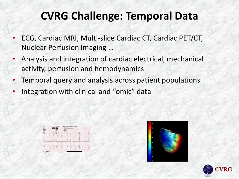 CVRG CVRG Challenge: Temporal Data ECG, Cardiac MRI, Multi-slice Cardiac CT, Cardiac PET/CT, Nuclear Perfusion Imaging … Analysis and integration of cardiac electrical, mechanical activity, perfusion and hemodynamics Temporal query and analysis across patient populations Integration with clinical and omic data