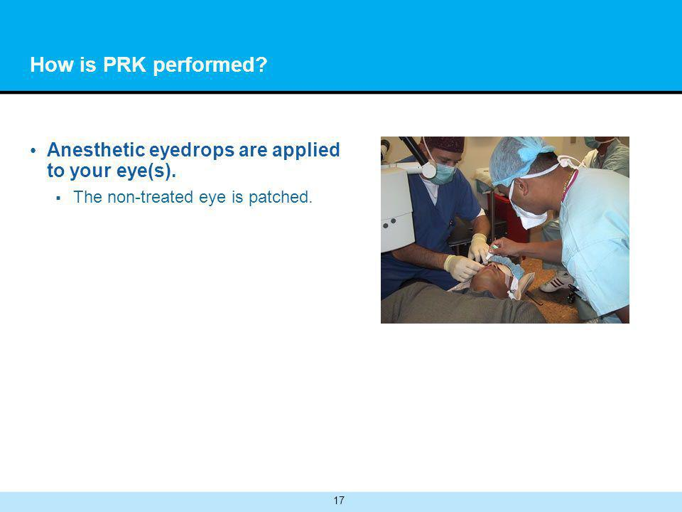 17 How is PRK performed. Anesthetic eyedrops are applied to your eye(s).