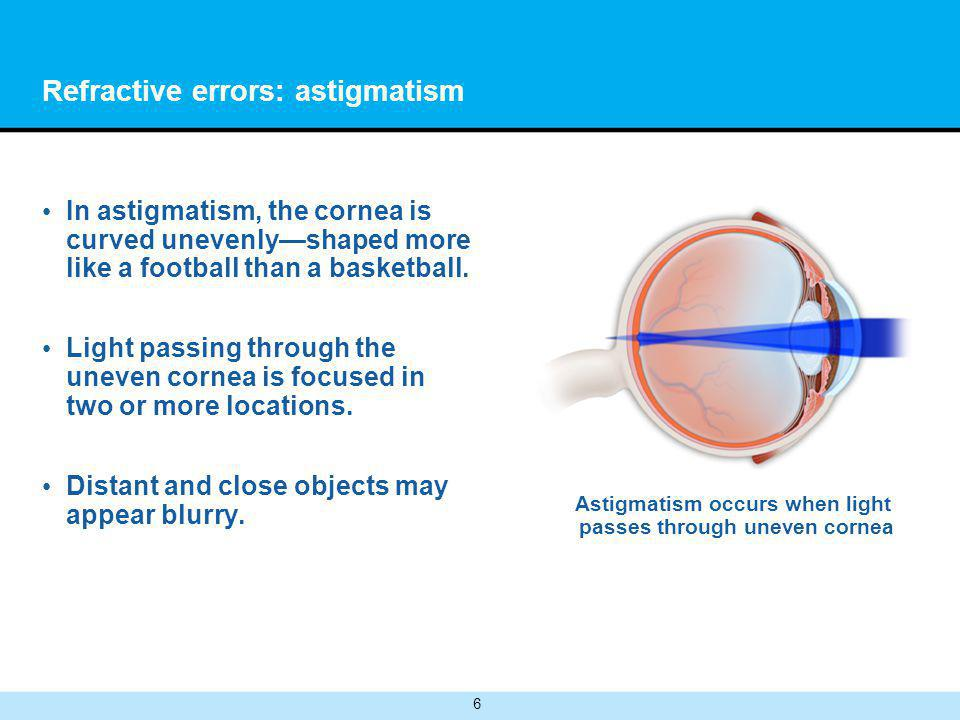 6 Refractive errors: astigmatism In astigmatism, the cornea is curved unevenlyshaped more like a football than a basketball.