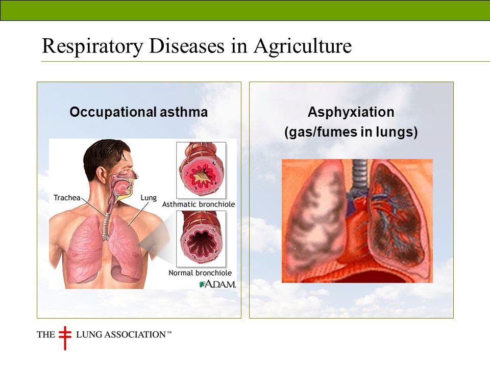 Occupational asthmaAsphyxiation (gas/fumes in lungs)