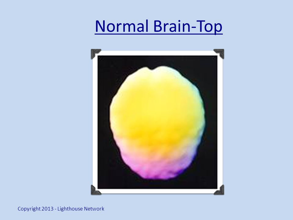 Normal Brain-Top Copyright 2013 - Lighthouse Network
