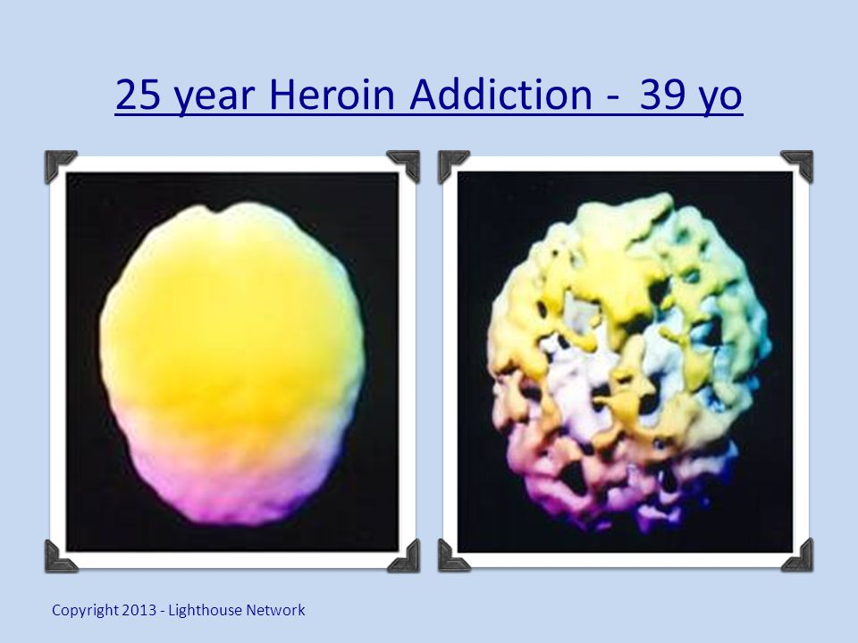 25 year Heroin Addiction - 39 yo Copyright 2013 - Lighthouse Network