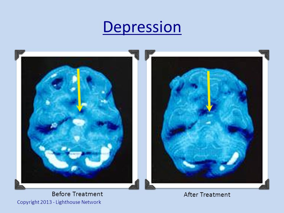 Depression Copyright 2013 - Lighthouse Network Before Treatment After Treatment