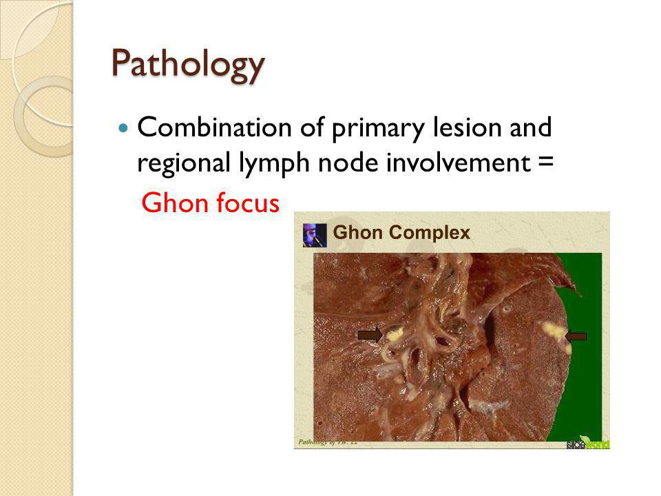 Pathology Combination of primary lesion and regional lymph node involvement = Ghon focus