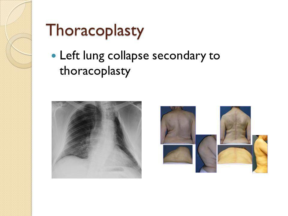 Thoracoplasty Left lung collapse secondary to thoracoplasty