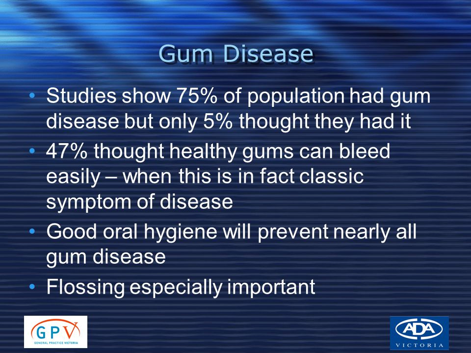 Gum Disease Studies show 75% of population had gum disease but only 5% thought they had it 47% thought healthy gums can bleed easily – when this is in fact classic symptom of disease Good oral hygiene will prevent nearly all gum disease Flossing especially important