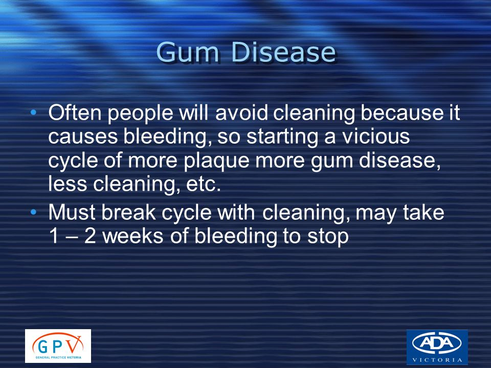Gum Disease Often people will avoid cleaning because it causes bleeding, so starting a vicious cycle of more plaque more gum disease, less cleaning, etc.