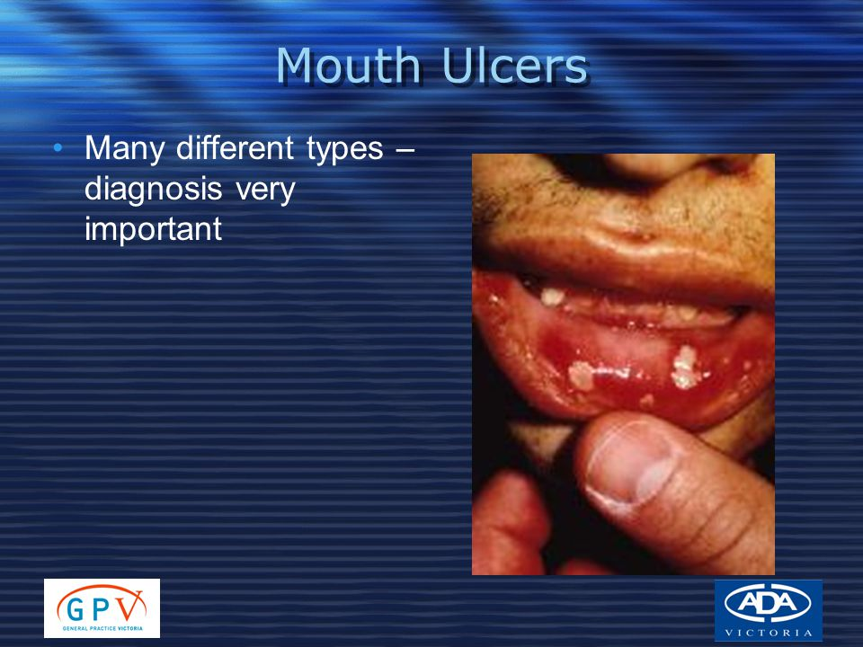 Mouth Ulcers Many different types – diagnosis very important
