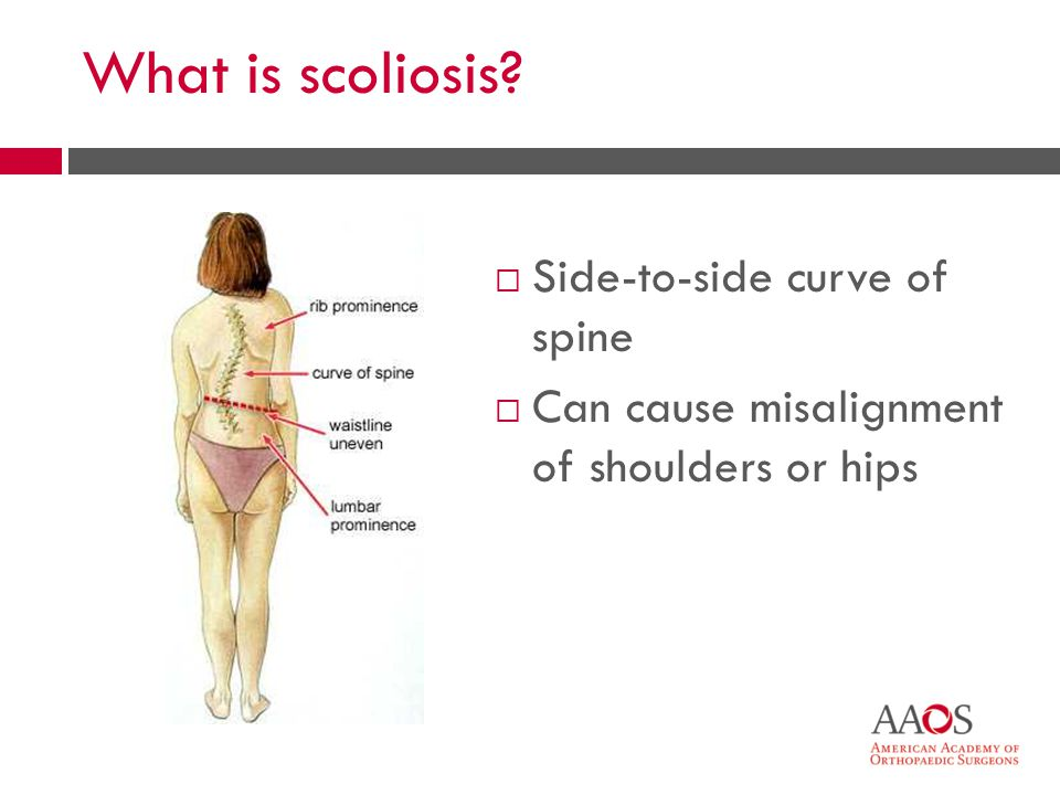 What is scoliosis Side-to-side curve of spine Can cause misalignment of shoulders or hips