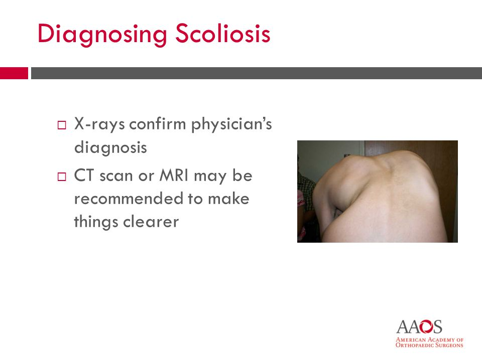 Diagnosing Scoliosis X-rays confirm physicians diagnosis CT scan or MRI may be recommended to make things clearer