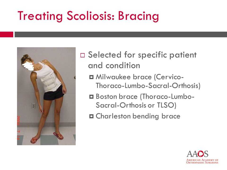 Treating Scoliosis: Bracing Selected for specific patient and condition Milwaukee brace (Cervico- Thoraco-Lumbo-Sacral-Orthosis) Boston brace (Thoraco-Lumbo- Sacral-Orthosis or TLSO) Charleston bending brace