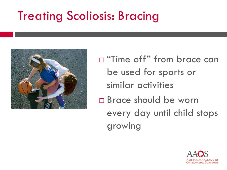 Treating Scoliosis: Bracing Time off from brace can be used for sports or similar activities Brace should be worn every day until child stops growing