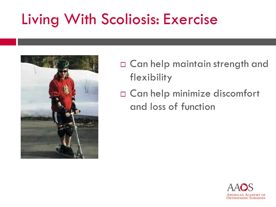 Living With Scoliosis: Exercise Can help maintain strength and flexibility Can help minimize discomfort and loss of function