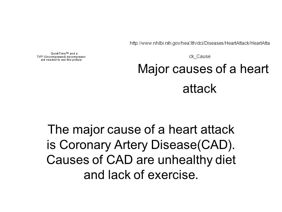http://www.nhlbi.nih.gov/hea`lth/dci/Diseases/HeartAttack/HeartAtta ck_Cause Major causes of a heart attack The major cause of a heart attack is Coronary Artery Disease(CAD).