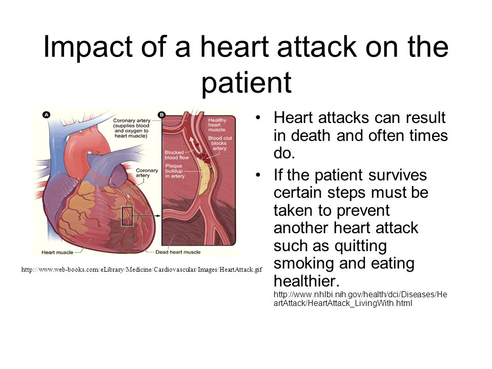 Impact of a heart attack on the patient Heart attacks can result in death and often times do.