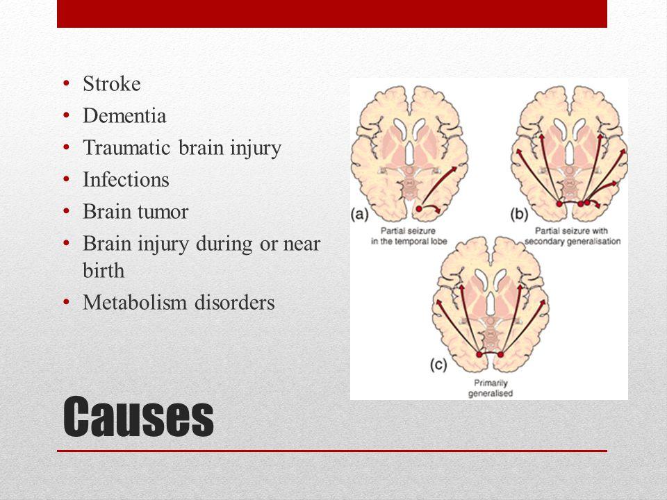 Epilepsy SierraLynn Johnson Maggie Trainor  Epilepsy