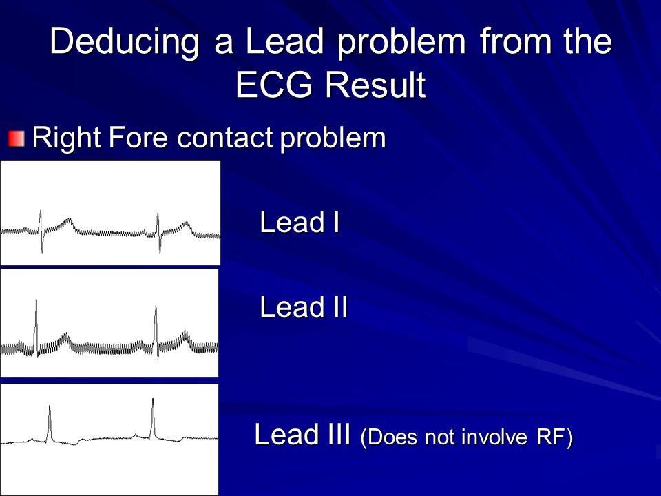 Deducing a Lead problem from the ECG Result Right Fore contact problem Lead I Lead I Lead II Lead II Lead III (Does not involve RF) Lead III (Does not involve RF)