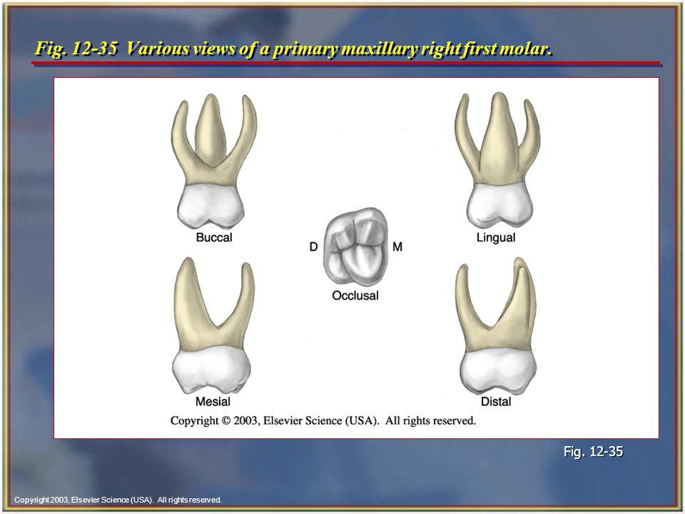 Famous Maxillary First Molar Anatomy Festooning Anatomy And