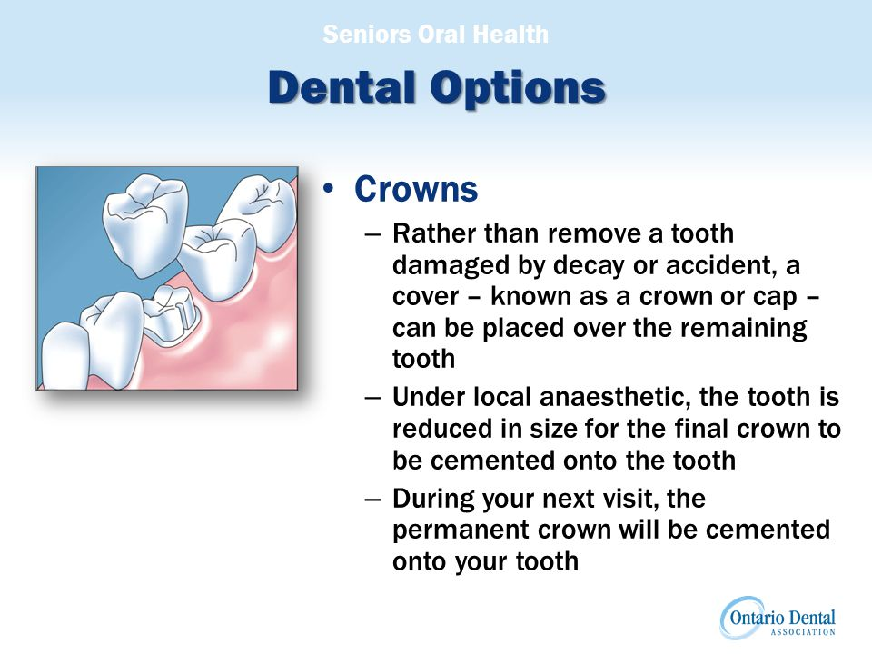 Seniors Oral Health Dental Options Crowns – Rather than remove a tooth damaged by decay or accident, a cover – known as a crown or cap – can be placed over the remaining tooth – Under local anaesthetic, the tooth is reduced in size for the final crown to be cemented onto the tooth – During your next visit, the permanent crown will be cemented onto your tooth Illustration of Crown
