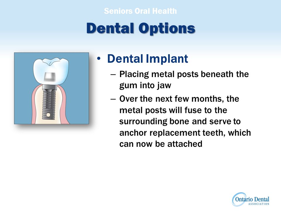 Seniors Oral Health Dental Options Dental Implant – Placing metal posts beneath the gum into jaw – Over the next few months, the metal posts will fuse to the surrounding bone and serve to anchor replacement teeth, which can now be attached