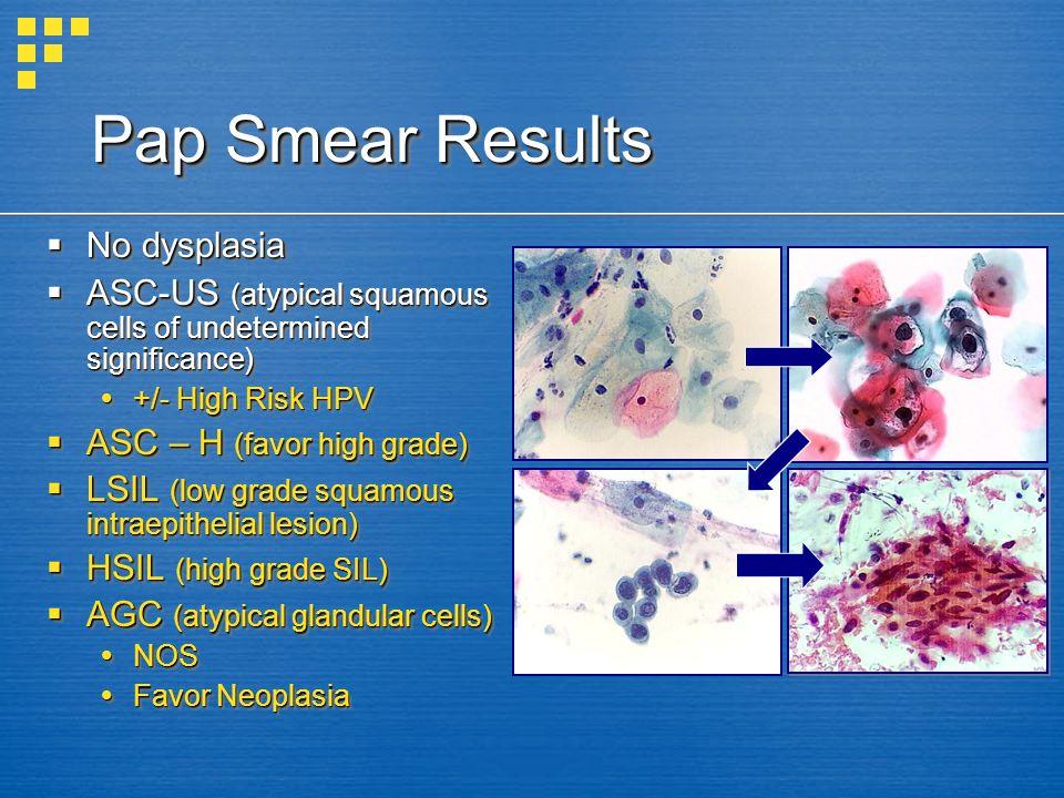 hpv abnormal squamous cells ejjeli fergek port