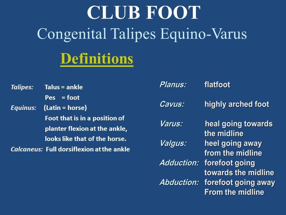 Common Pediatric Foot Deformities Clubfoot Congenital Talipes