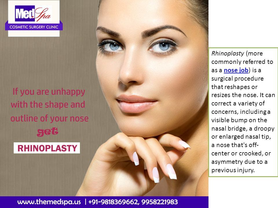 Rhinoplasty Nose Job Surgery in India - ppt download