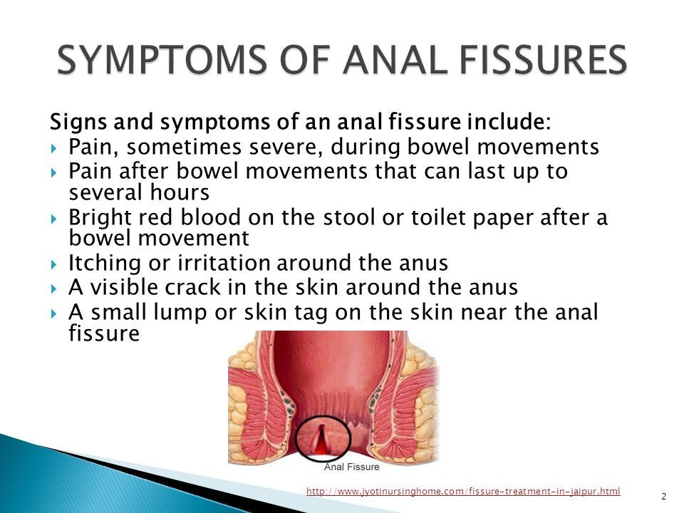 Anal fissure pain after bowel movement