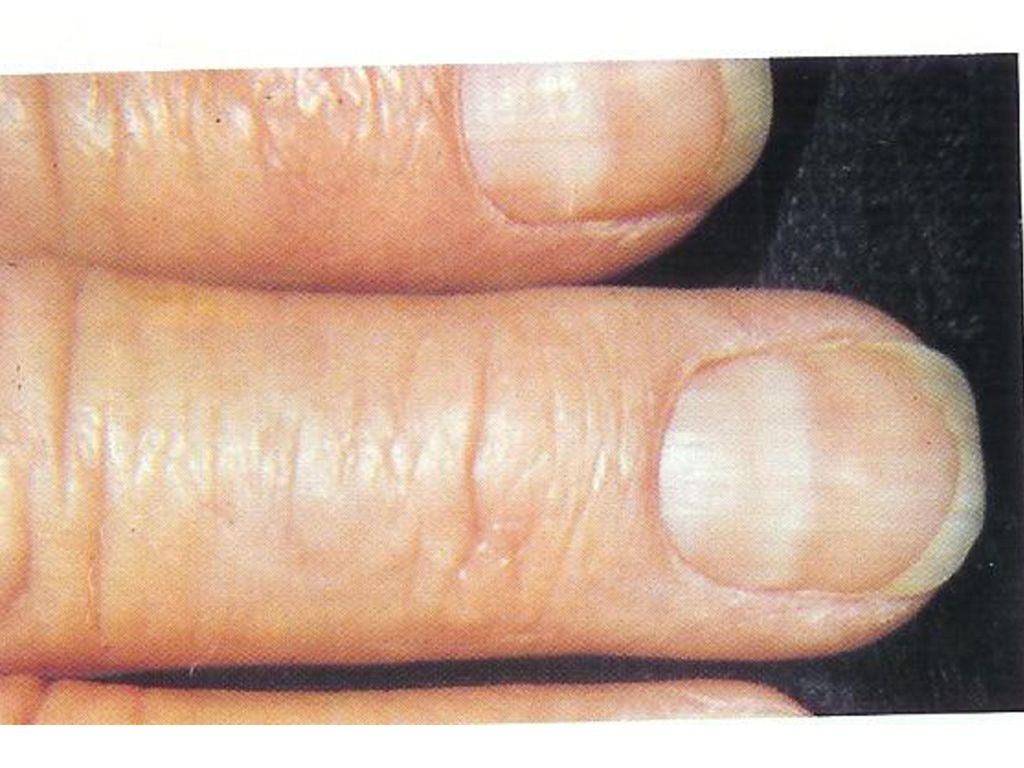 FINGERNAILS AND WHAT THEY REVEAL - ppt download