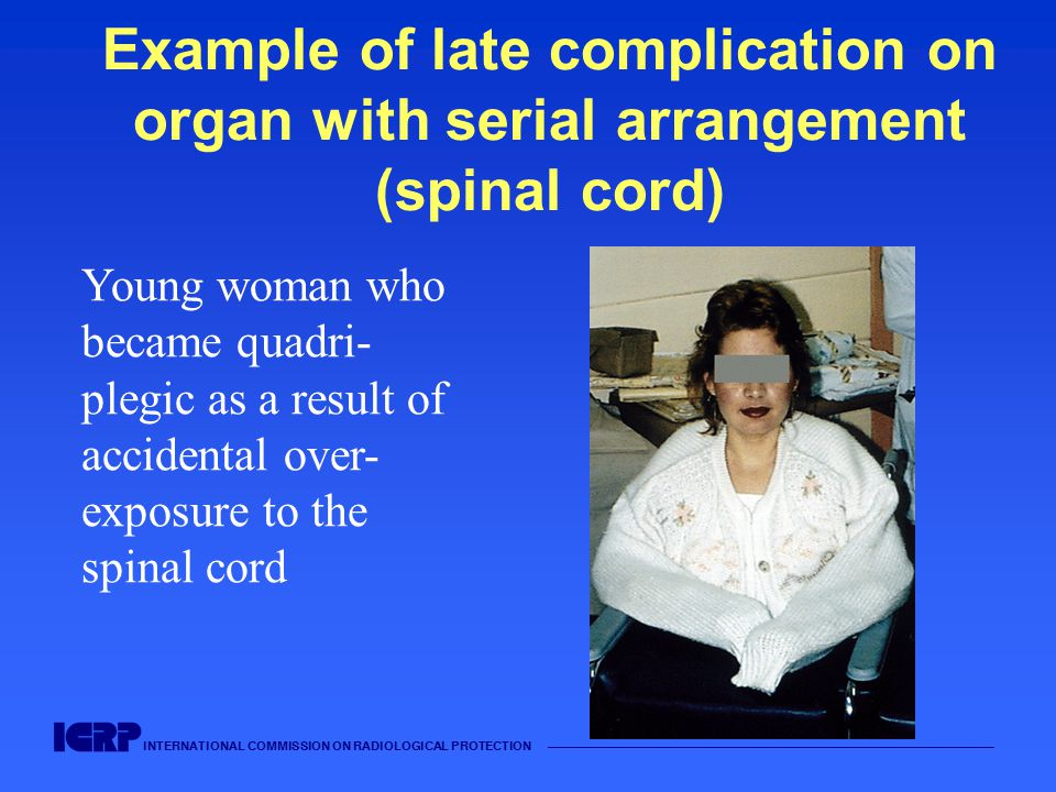 INTERNATIONAL COMMISSION ON RADIOLOGICAL PROTECTION —————————————————————————————————————— Example of late complication on organ with serial arrangement (spinal cord) Young woman who became quadri- plegic as a result of accidental over- exposure to the spinal cord
