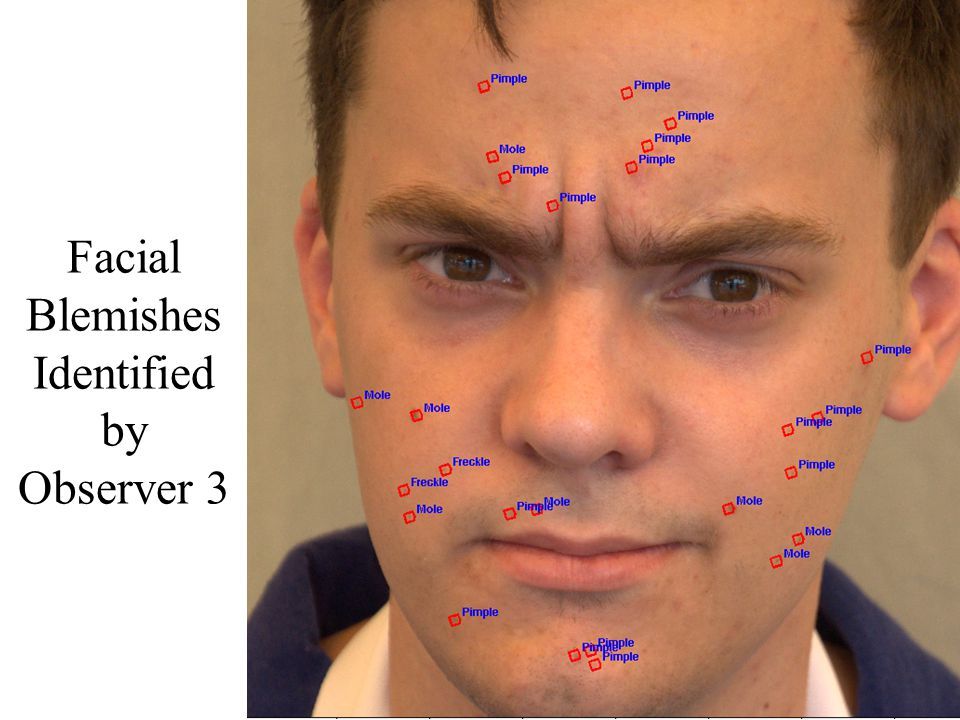 Facial Blemishes Identified by Observer 3