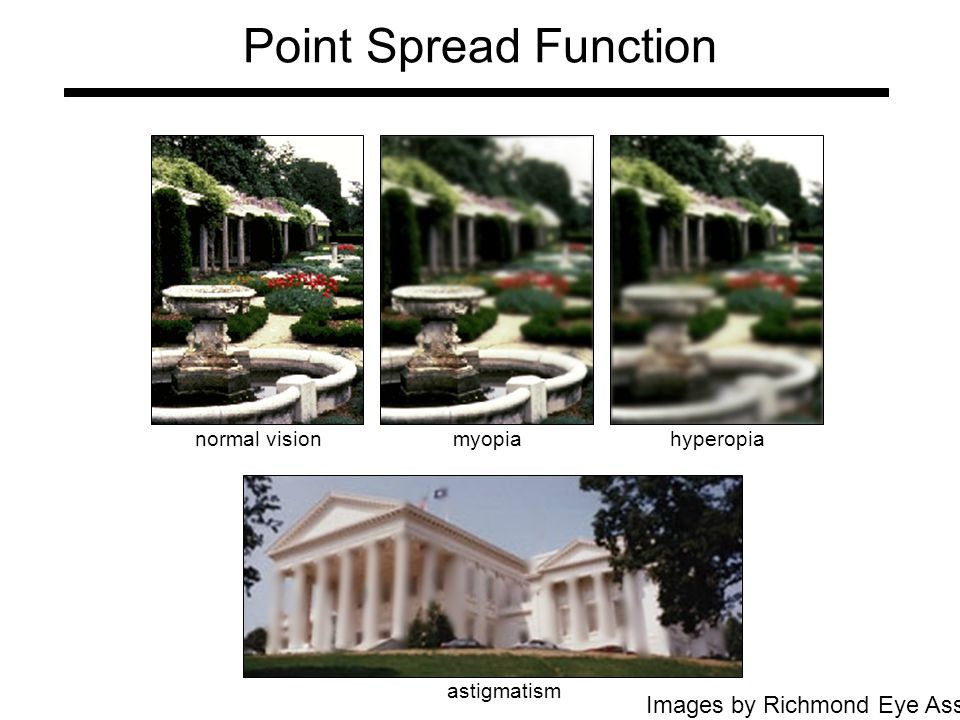 Point Spread Function normal visionmyopiahyperopia Images by Richmond Eye Associates astigmatism