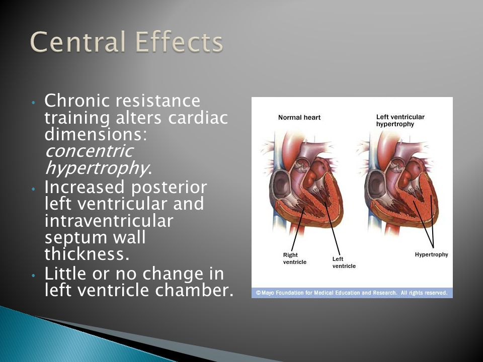 Chronic resistance training alters cardiac dimensions: concentric hypertrophy.