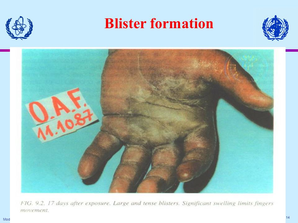 Module Medical XIII. 14 Blister formation