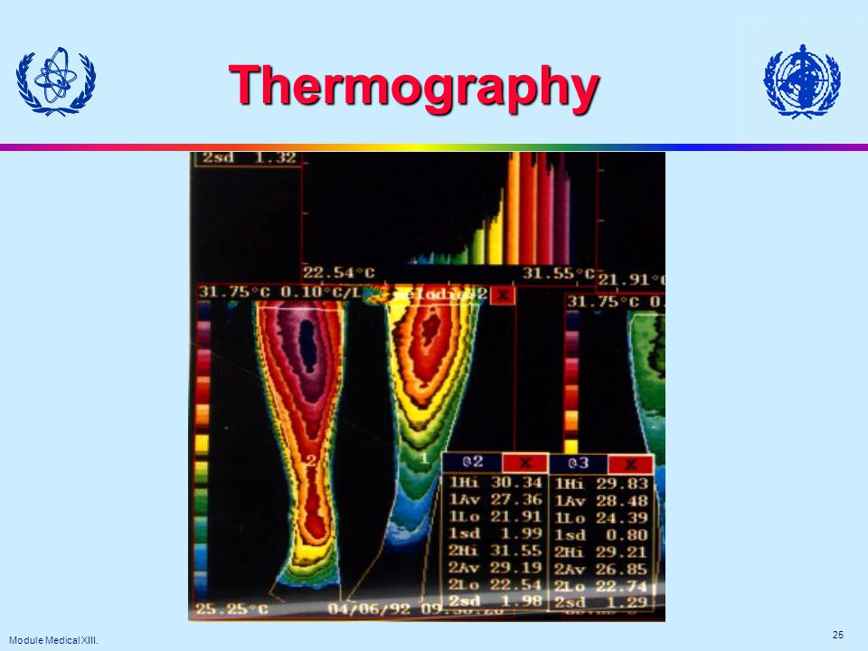Module Medical XIII. 25 Thermography