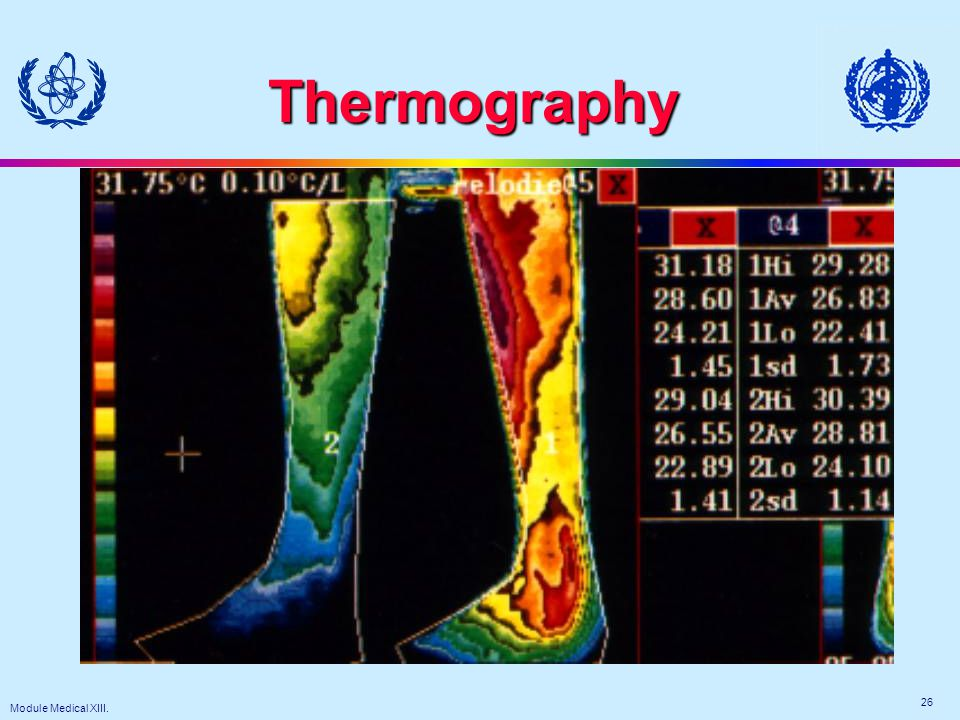 Module Medical XIII. 26 Thermography