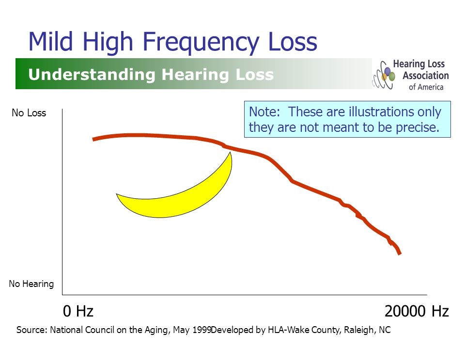 Developed by HLA-Wake County, Raleigh, NC Mild High Frequency Loss Understanding Hearing Loss Source: National Council on the Aging, May 1999 0 Hz20000 Hz No Loss No Hearing Note: These are illustrations only they are not meant to be precise.