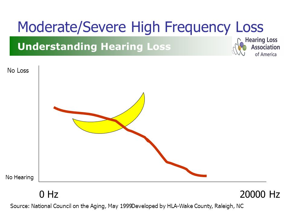 Developed by HLA-Wake County, Raleigh, NC Moderate/Severe High Frequency Loss Understanding Hearing Loss Source: National Council on the Aging, May 1999 0 Hz20000 Hz No Loss No Hearing