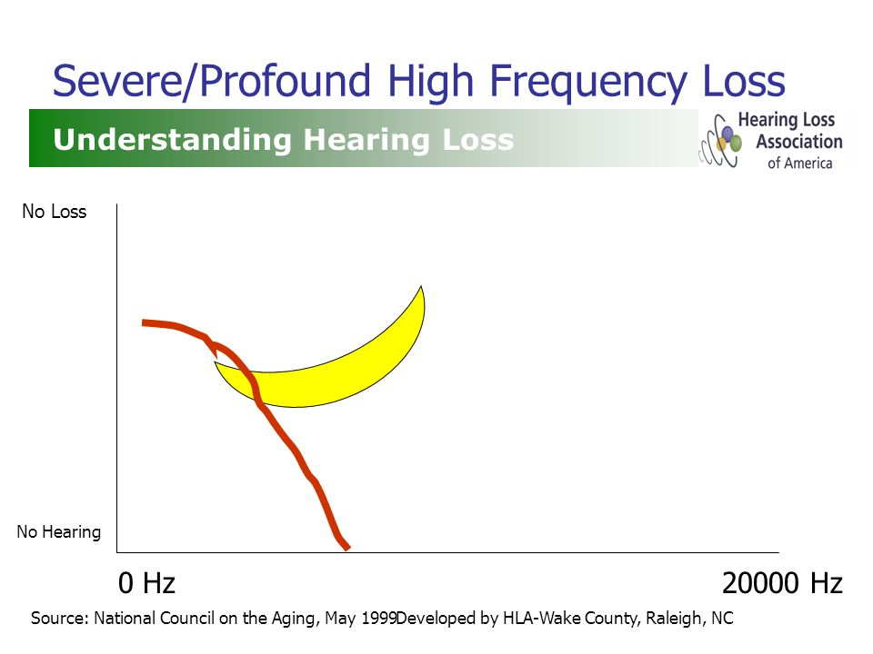 Developed by HLA-Wake County, Raleigh, NC Severe/Profound High Frequency Loss Understanding Hearing Loss Source: National Council on the Aging, May 1999 0 Hz20000 Hz No Loss No Hearing
