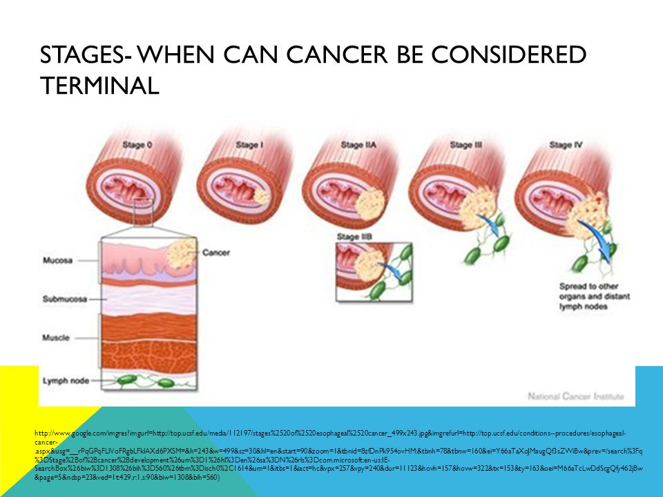 STAGES- WHEN CAN CANCER BE CONSIDERED TERMINAL http://www.google.com/imgres imgurl=http://top.ucsf.edu/media/112197/stages%2520of%2520esophageal%2520cancer_499x243.jpg&imgrefurl=http://top.ucsf.edu/conditions--procedures/esophageal- cancer-.aspx&usg=__rPqGPqFLlVoFRgbLFklAXd6PXSM=&h=243&w=499&sz=30&hl=en&start=90&zoom=1&tbnid=8zfDnPk954ovHM:&tbnh=78&tbnw=160&ei=Y66aTaXoJMaugQf3sZWiBw&prev=/search%3Fq %3DStage%2Bof%2Bcancer%2Bdevelopment%26um%3D1%26hl%3Den%26sa%3DN%26rls%3Dcom.microsoft:en-us:IE- SearchBox%26biw%3D1308%26bih%3D560%26tbm%3Disch0%2C1614&um=1&itbs=1&iact=hc&vpx=257&vpy=240&dur=11123&hovh=157&hovw=322&tx=153&ty=163&oei=M66aTcLwDdScgQfy462jBw &page=5&ndsp=23&ved=1t:429,r:1,s:90&biw=1308&bih=560)