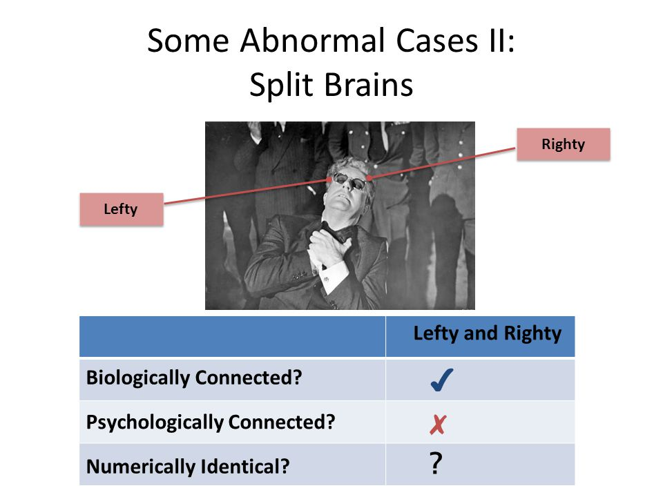 Some Abnormal Cases II: Split Brains Lefty and Righty Biologically Connected.