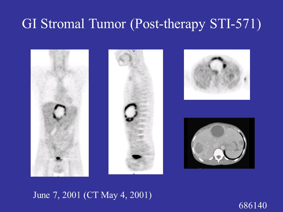 686140 June 7, 2001 (CT May 4, 2001) GI Stromal Tumor (Post-therapy STI-571)