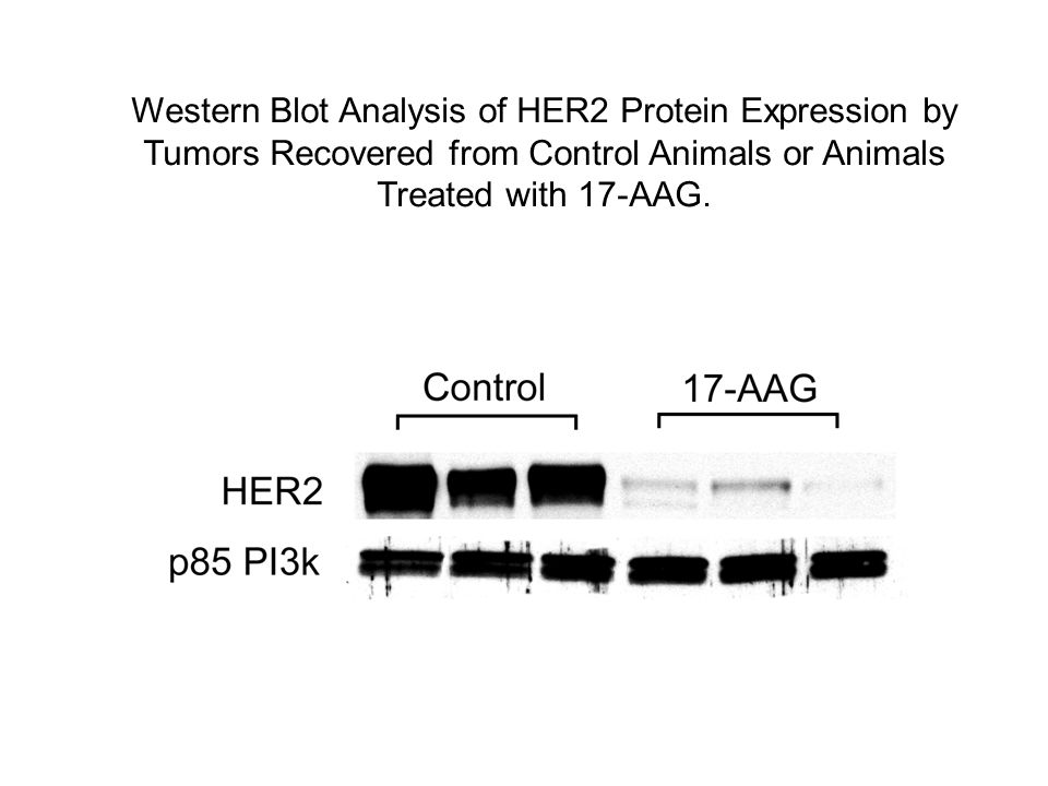 Western Blot Analysis of HER2 Protein Expression by Tumors Recovered from Control Animals or Animals Treated with 17-AAG.