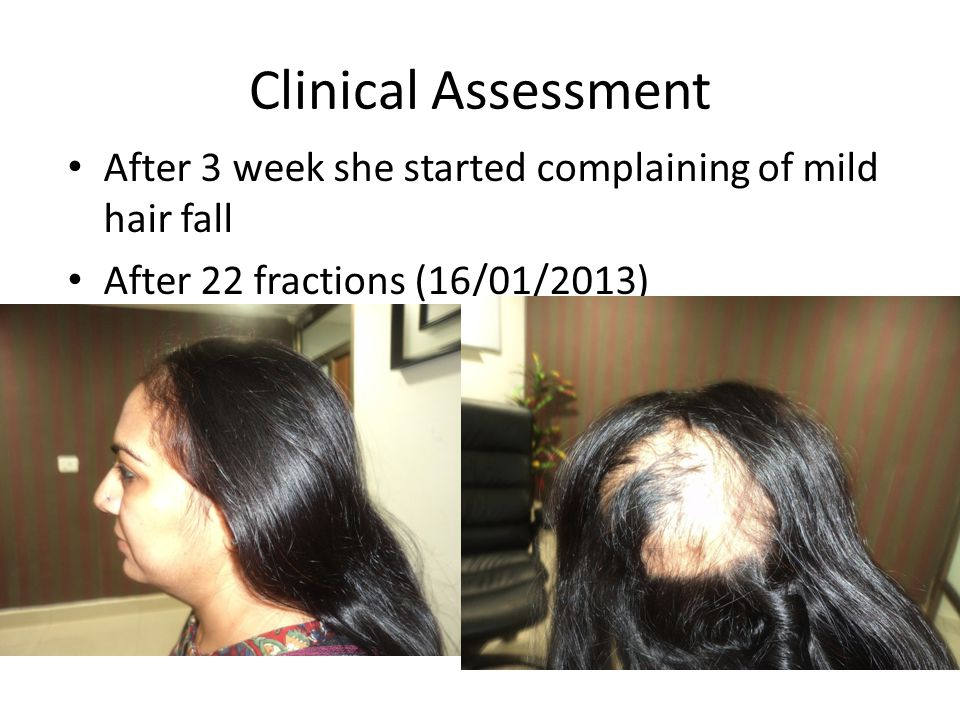 Clinical Assessment After 3 week she started complaining of mild hair fall After 22 fractions (16/01/2013)