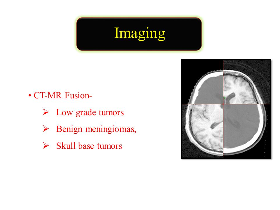 Imaging CT-MR Fusion-  Low grade tumors  Benign meningiomas,  Skull base tumors