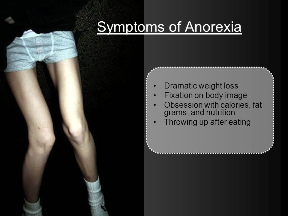Symptoms of Anorexia Dramatic weight loss Fixation on body image Obsession with calories, fat grams, and nutrition Throwing up after eating